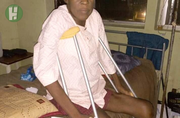 Photo of Kannywood veteran actor in critical condition, his leg amputated